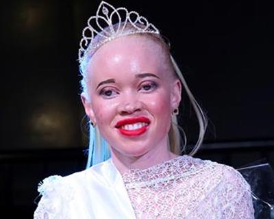 A Look into the World of Albino Beauty Pageants